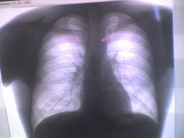 Рентген диагностика ушиба груди