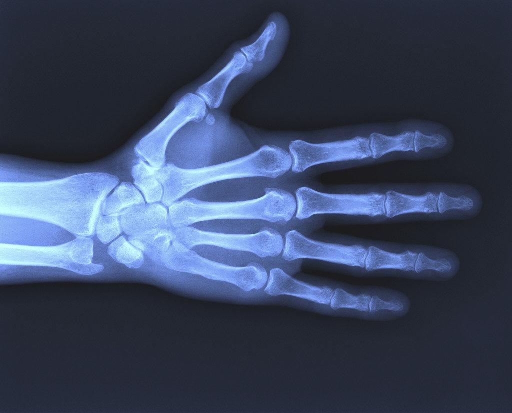 Ушиб кисти рук рентген