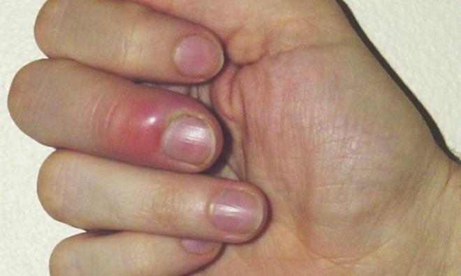 загноившийся ноготь на пальце руки при панариции