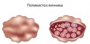 Множественные кисты яичников