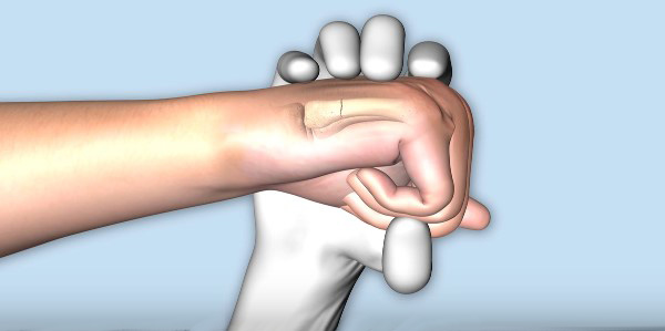 удар травма руки