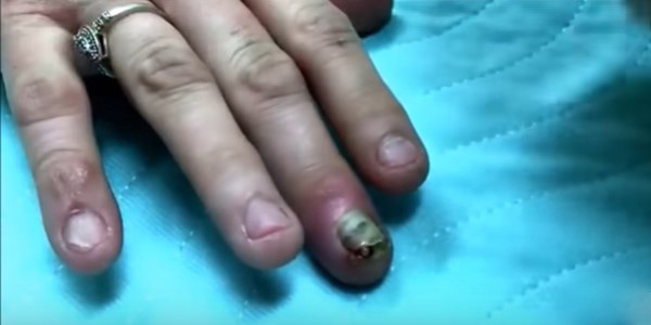 нарыв на пальце панарихий