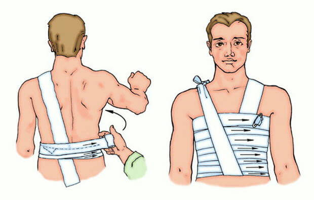 Фиксирующая повязка на грудь