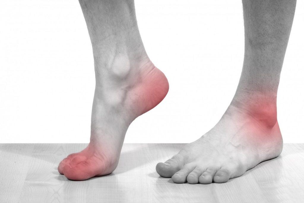 текстильная болит стопа ноги картинки национальная