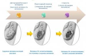 Изменения в яичниках