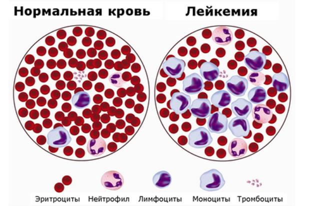 Рак крови лейкоз