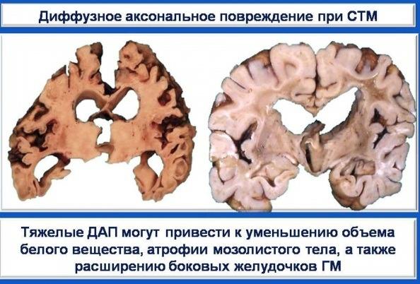Диффузное аксональное повреждение мозга: признаки и лечение