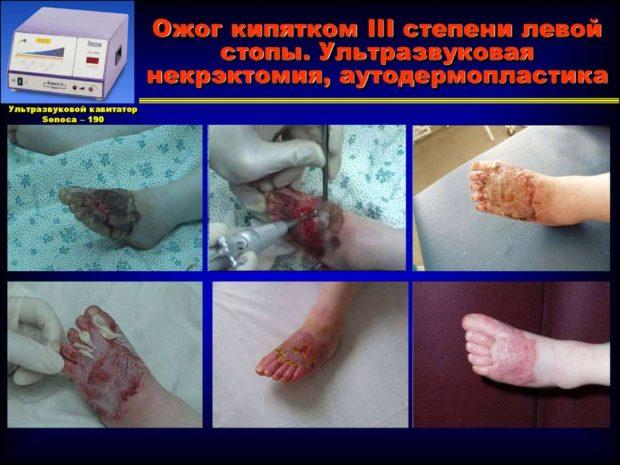Лечение ожога 3 степени аппаратом Кавитатор