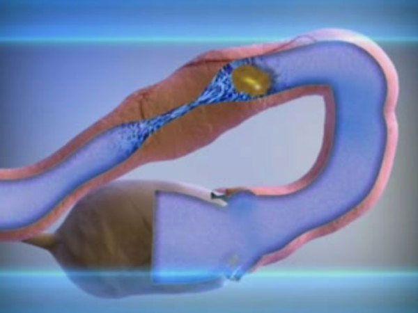 Как проверить проходимость маточных труб?