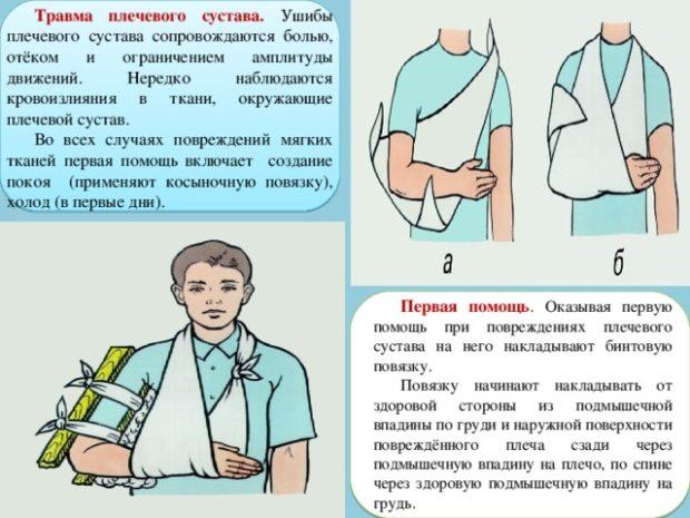 Накладывание обездвиживающей повязки - правила