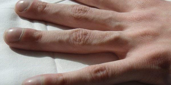 утолщение пальцы