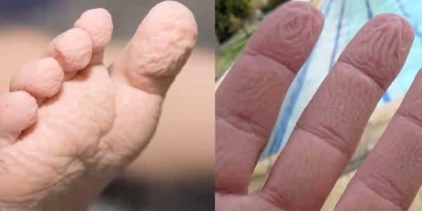 морщинистые ноги руки