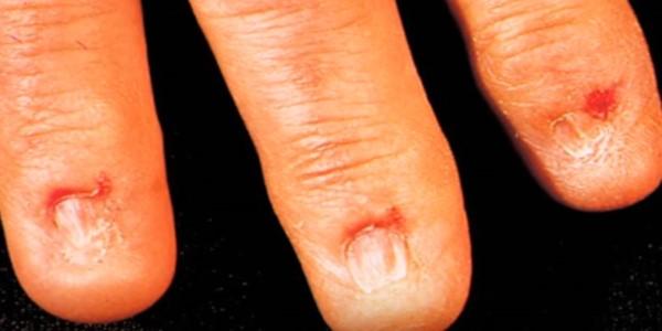 полное отсутствие ногтя