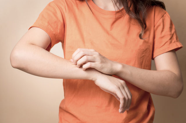 Атопический дерматит? Кокосовое масло облегчает симптомы