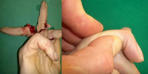 отрезан палец руки