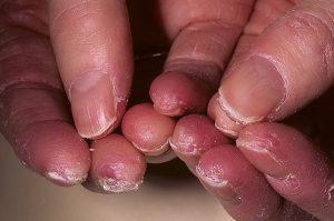 Пальцы рук с экземой