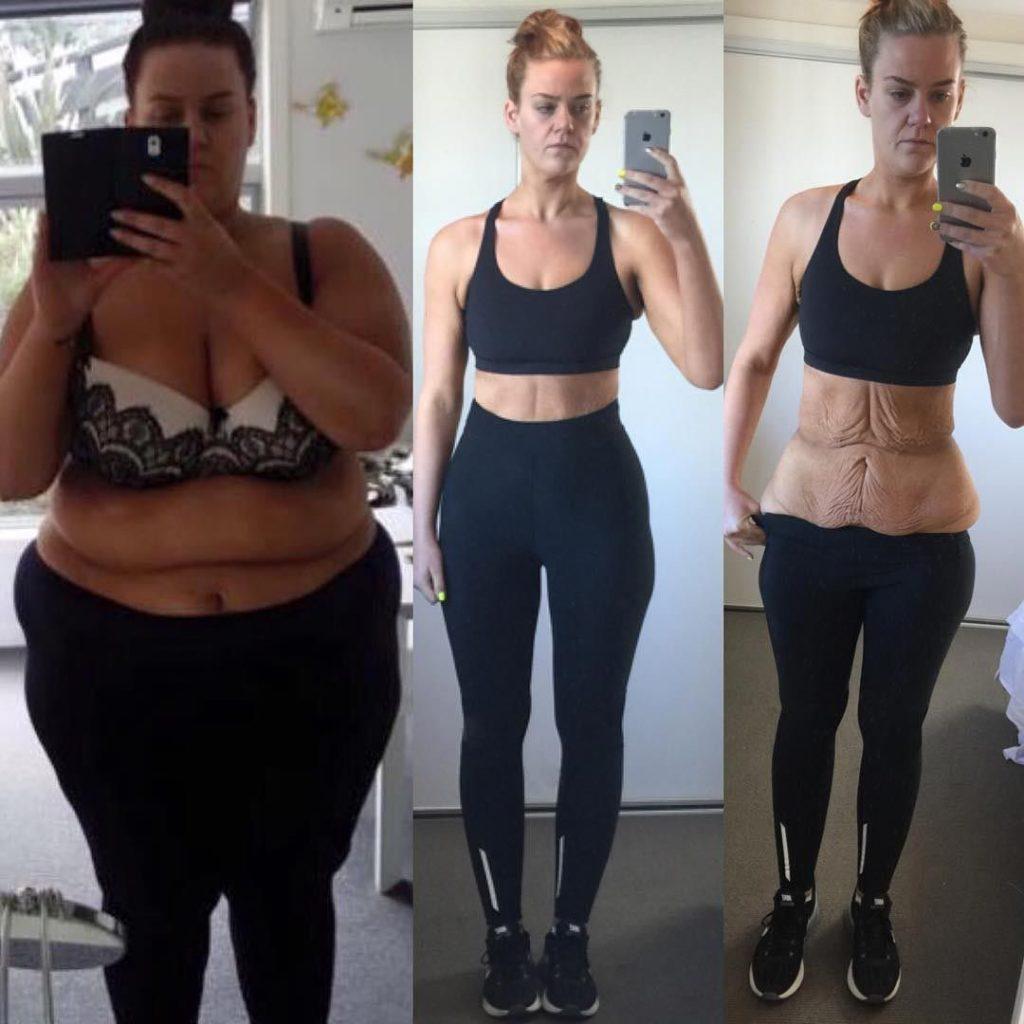 Примеры A Для Похудения. 17 реальных историй фантастического похудения с фото до и после