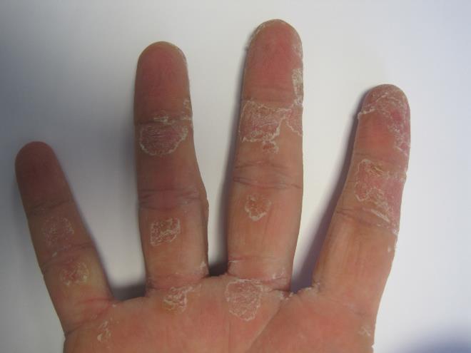 как слазит кожа на пальцах рук