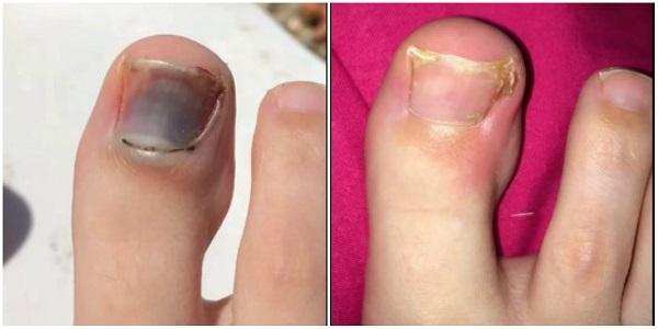 отслоение травма ногтя