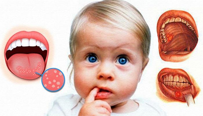Cтоматит у детей
