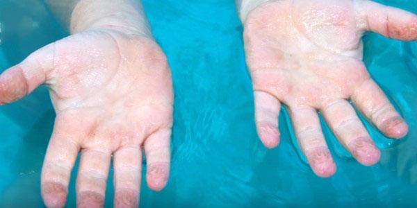 морщины вода руки