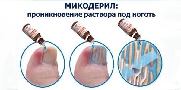лечение микодерилом