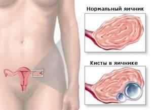 обнаружили кисту правого яичника, возможно ли продолжение программы ЭКО