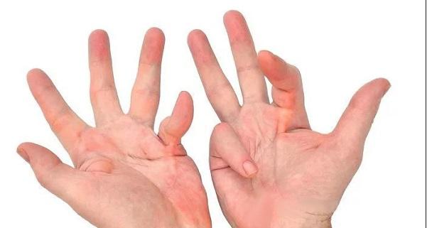 появление артрита пальцев рук