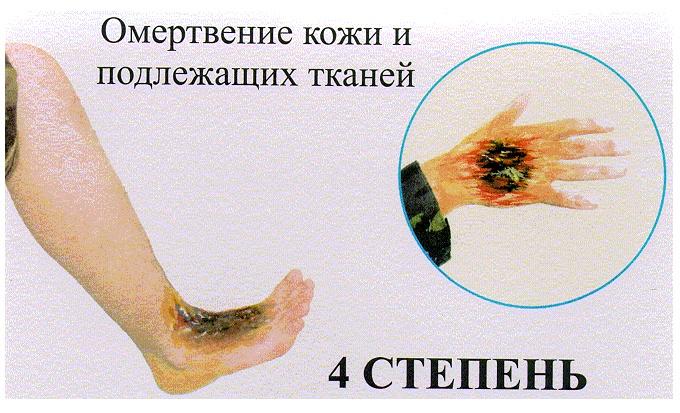 Операция пересадки кожи при ожогах материалы и восстановление