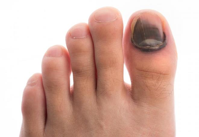 синяк на большом пальце ноги