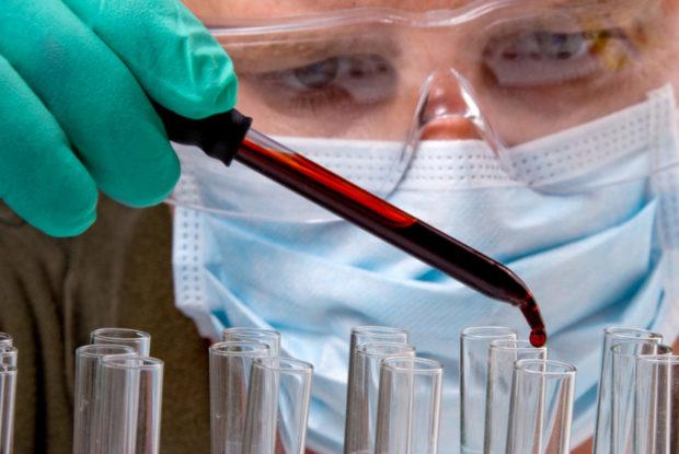 ГГТ показатель в биохимическом анализе крови и что вызывает отклонения
