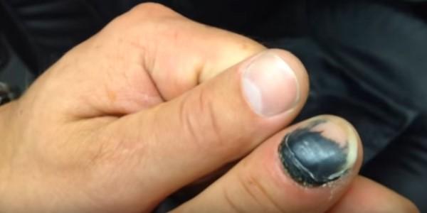 травма пальца ногтя