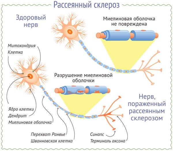 причина рассеянного склероза