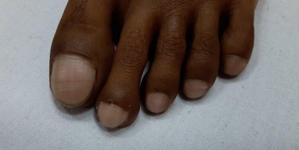 заболевание на ногах