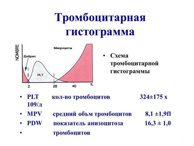 Тромбоцитарная гистограмма после анализа