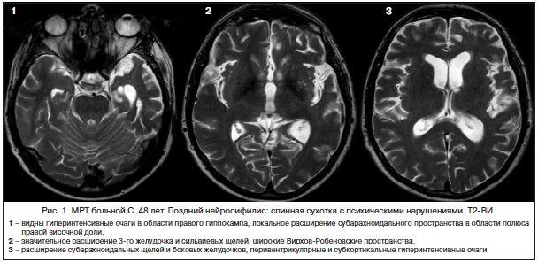 neurulues