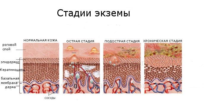 Стадии развития экземы
