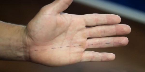 немеет безымянный палец