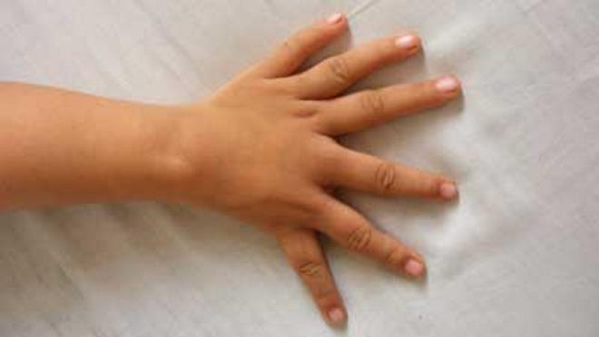 фото 6 пальцев на руке