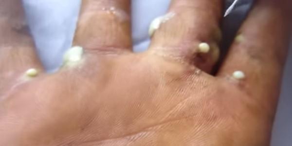кожный параниций