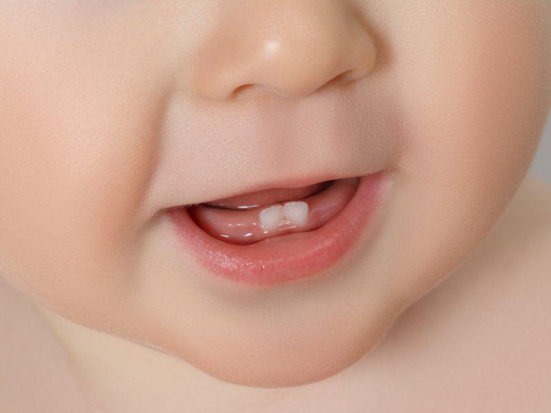 Сроки и симптомы прорезывания зубов у детей