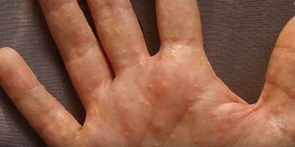 водянка на руке