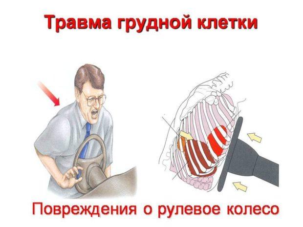 Ушиб груди при ДТП