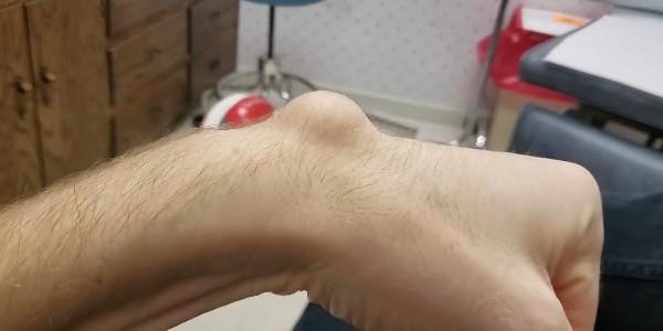 наросты в области пальцев рук