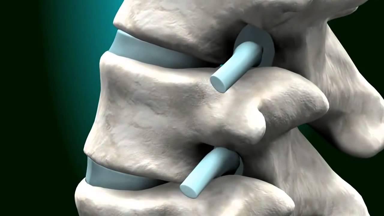 Что такое гемангиома позвоночника, причины и симптомы патологии у взрослых