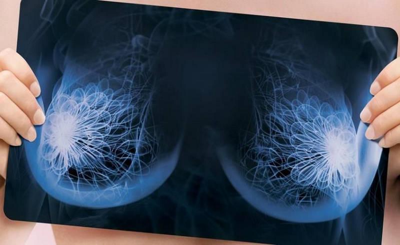 Микрокальцинаты в молочной железе - что это такое? Причины, диагностика