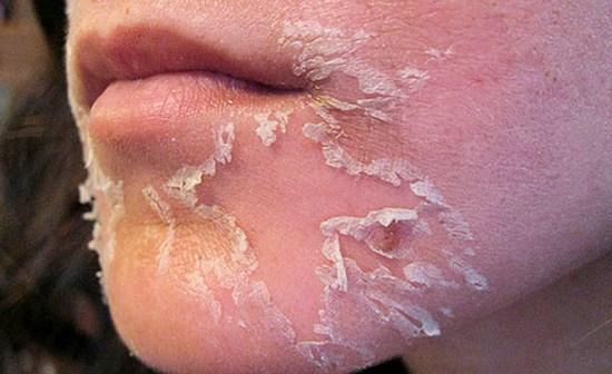 Отшелушивание кожи при заживлении ожога после пилинга